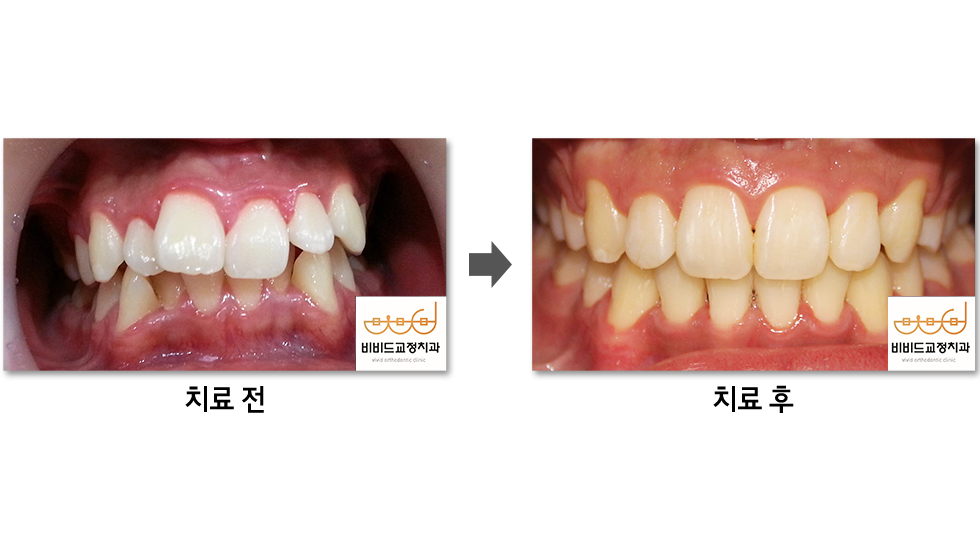 치아의 삐뚤어짐 이미지